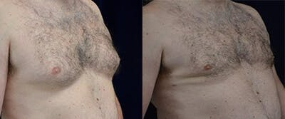 Gynecomastia Reduction Gallery - Patient 4567177 - Image 1