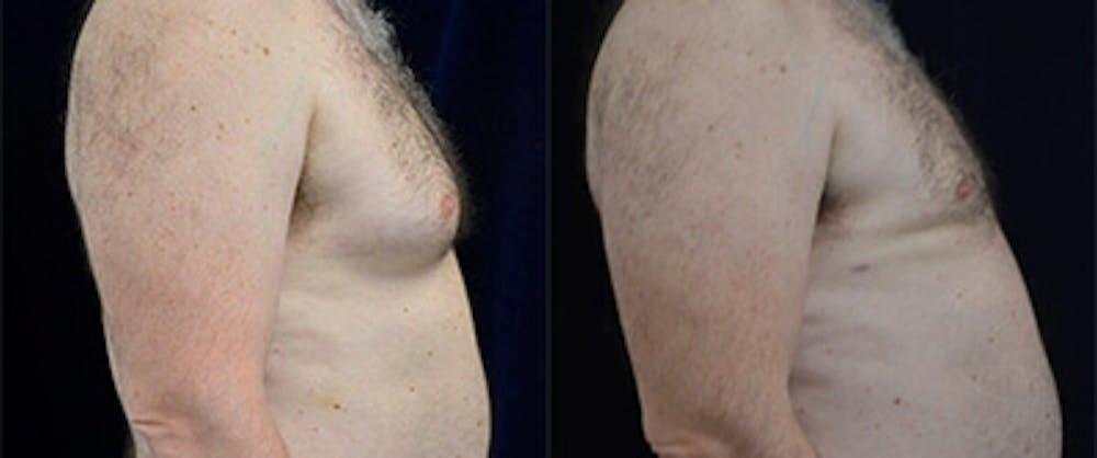Gynecomastia Reduction Gallery - Patient 4567178 - Image 1