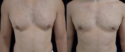 Gynecomastia Reduction Gallery - Patient 4567179 - Image 1