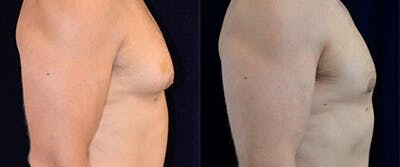 Gynecomastia Reduction Gallery - Patient 4567181 - Image 1
