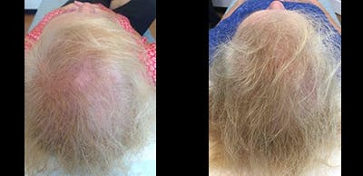 PRP for Hair Restoration Gallery - Patient 4567183 - Image 1