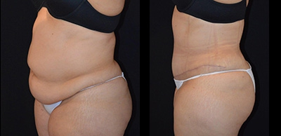 Abdominoplasty Gallery - Patient 4567197 - Image 2