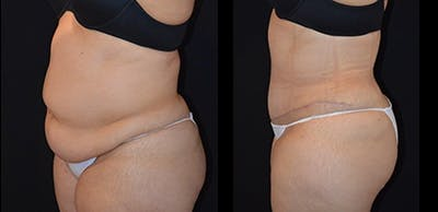 Abdominoplasty Gallery - Patient 4567197 - Image 1