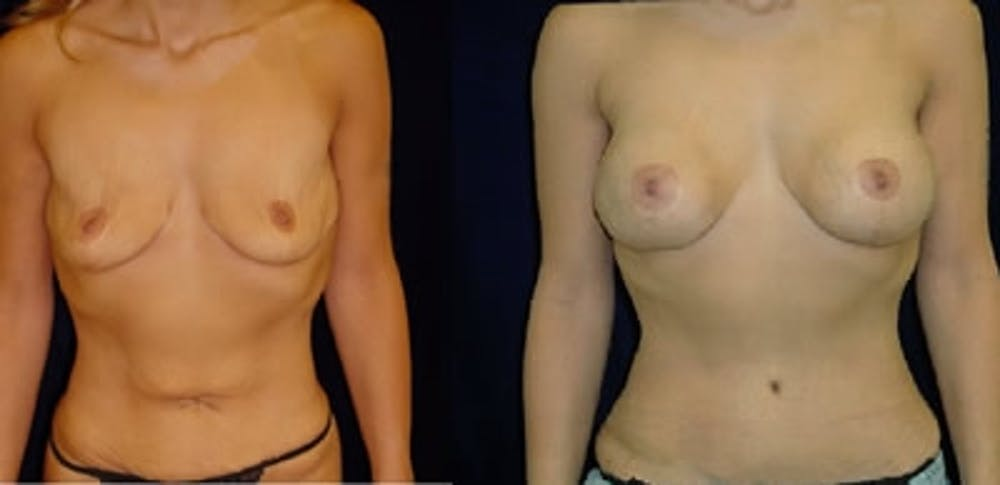 Abdominoplasty Gallery - Patient 4567199 - Image 1