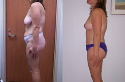 Abdominoplasty Gallery - Patient 4567200 - Image 1