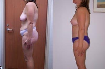 Abdominoplasty Gallery - Patient 4567200 - Image 1