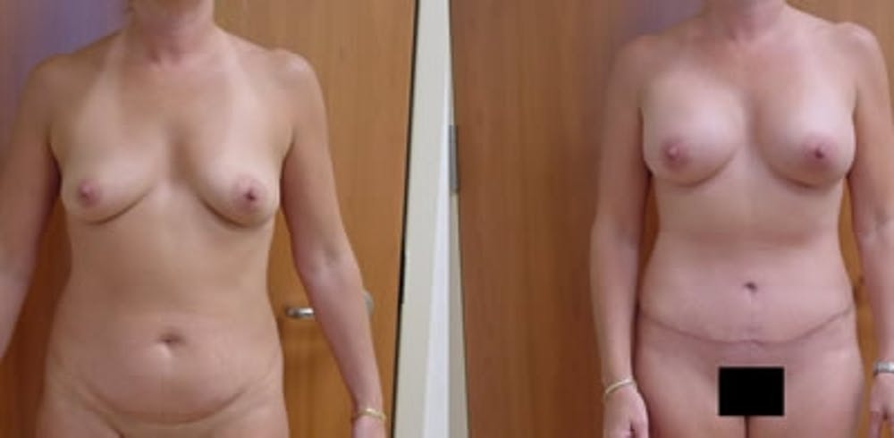 Abdominoplasty Gallery - Patient 4567201 - Image 1