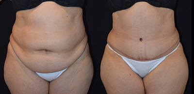 Abdominoplasty Gallery - Patient 4567202 - Image 7