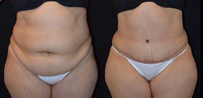 Abdominoplasty Gallery - Patient 4567202 - Image 1