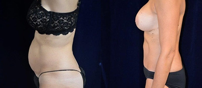Abdominoplasty Gallery - Patient 4567203 - Image 8