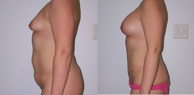 Abdominoplasty Gallery - Patient 4567205 - Image 10