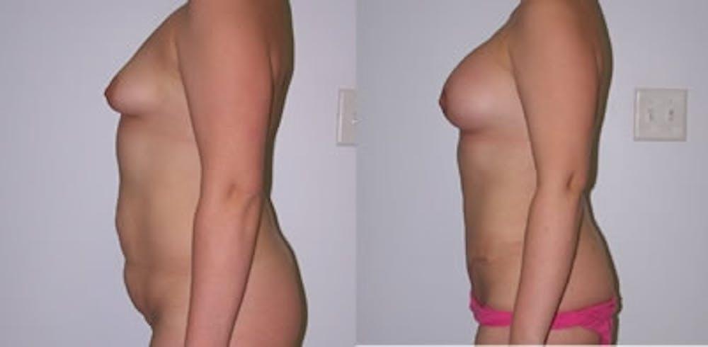 Abdominoplasty Gallery - Patient 4567205 - Image 1