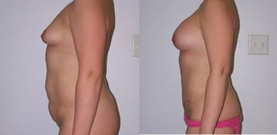 Abdominoplasty Gallery - Patient 4567205 - Image 1