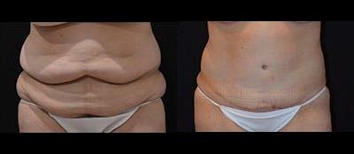 Abdominoplasty Gallery - Patient 4567206 - Image 1