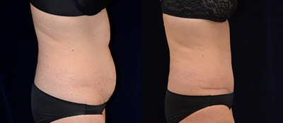 Abdominoplasty Gallery - Patient 4567207 - Image 12