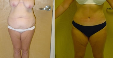Abdominoplasty Gallery - Patient 4567208 - Image 13