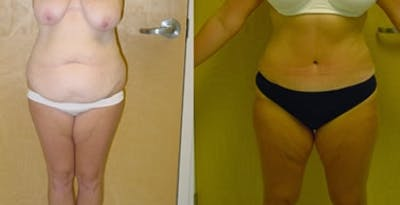 Abdominoplasty Gallery - Patient 4567208 - Image 1