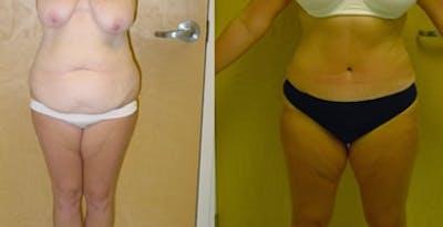Abdominoplasty Gallery - Patient 4567208 - Image 1