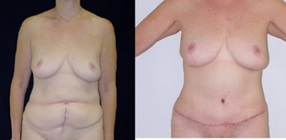 Abdominoplasty Gallery - Patient 4567209 - Image 1