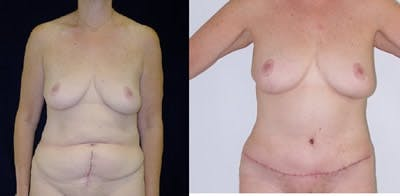 Abdominoplasty Gallery - Patient 4567209 - Image 1