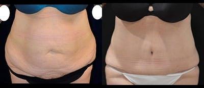 Abdominoplasty Gallery - Patient 4567210 - Image 1