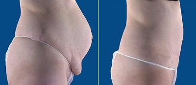 Abdominoplasty Gallery - Patient 4567211 - Image 1