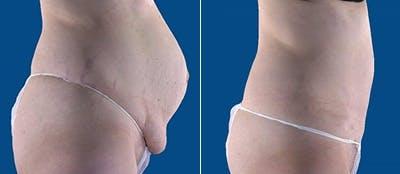 Abdominoplasty Gallery - Patient 4567211 - Image 1