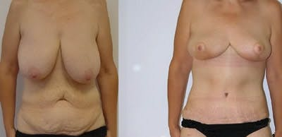 Abdominoplasty Gallery - Patient 4567212 - Image 1