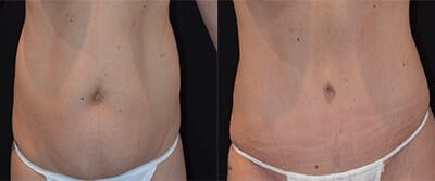 Abdominoplasty Gallery - Patient 4567213 - Image 1
