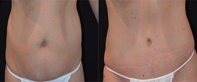 Abdominoplasty Gallery - Patient 4567213 - Image 1