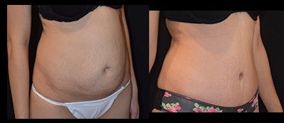 Abdominoplasty Gallery - Patient 4567214 - Image 19
