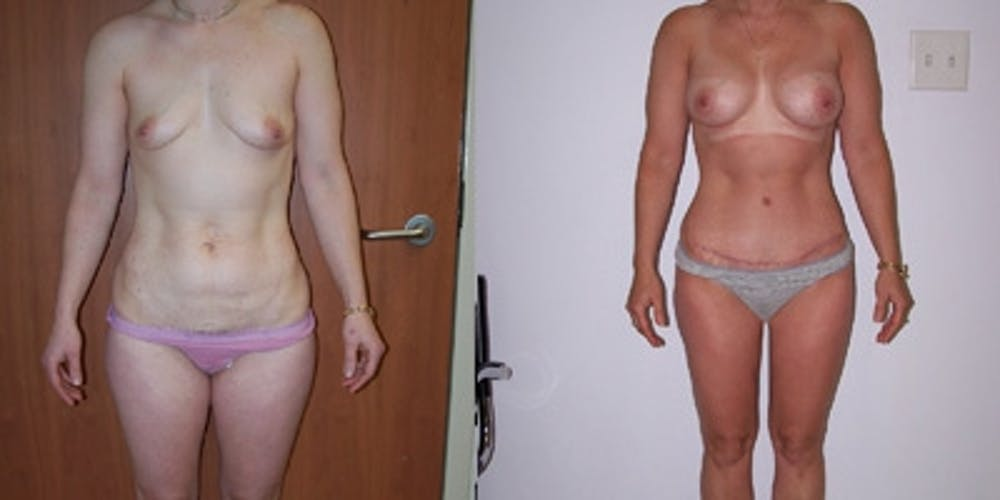 Abdominoplasty Gallery - Patient 4567215 - Image 1