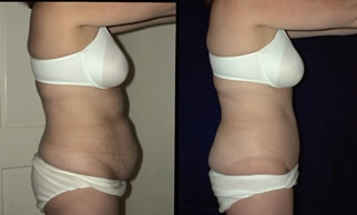 Abdominoplasty Gallery - Patient 4567216 - Image 21