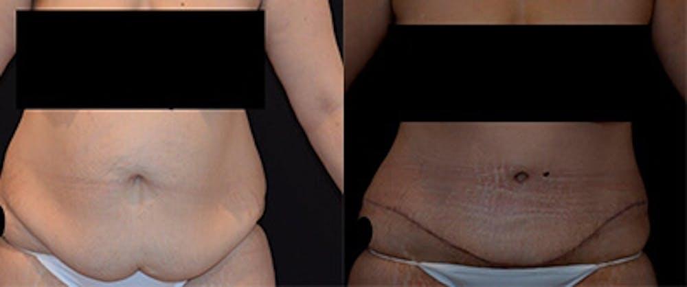 Abdominoplasty Gallery - Patient 4567217 - Image 1