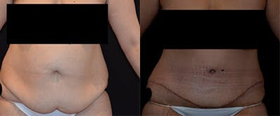 Abdominoplasty Gallery - Patient 4567217 - Image 1