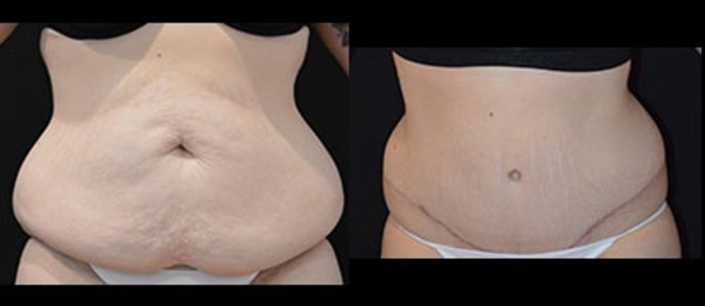 Abdominoplasty Gallery - Patient 4567218 - Image 1