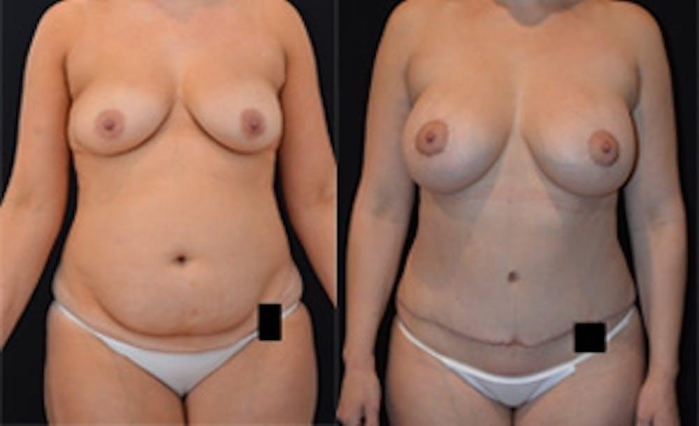 Abdominoplasty Gallery - Patient 4567219 - Image 1
