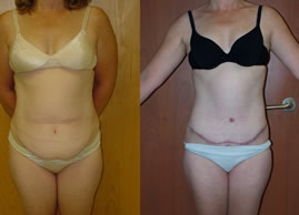 Abdominoplasty Gallery - Patient 4567220 - Image 25