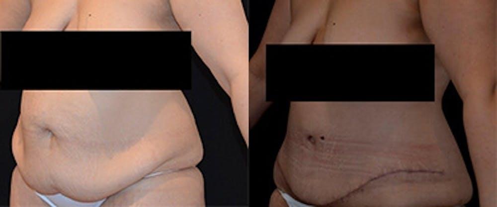 Abdominoplasty Gallery - Patient 4567221 - Image 1