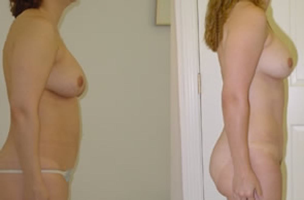 Abdominoplasty Gallery - Patient 4567224 - Image 1