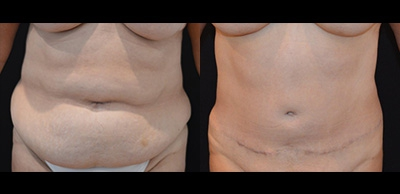 Abdominoplasty Gallery - Patient 4567225 - Image 30