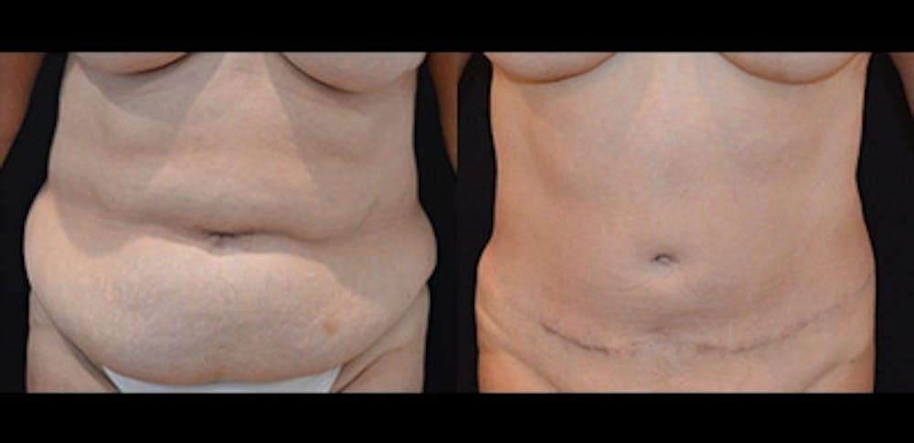 Abdominoplasty Gallery - Patient 4567225 - Image 1