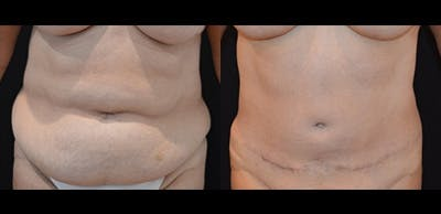 Abdominoplasty Gallery - Patient 4567225 - Image 1