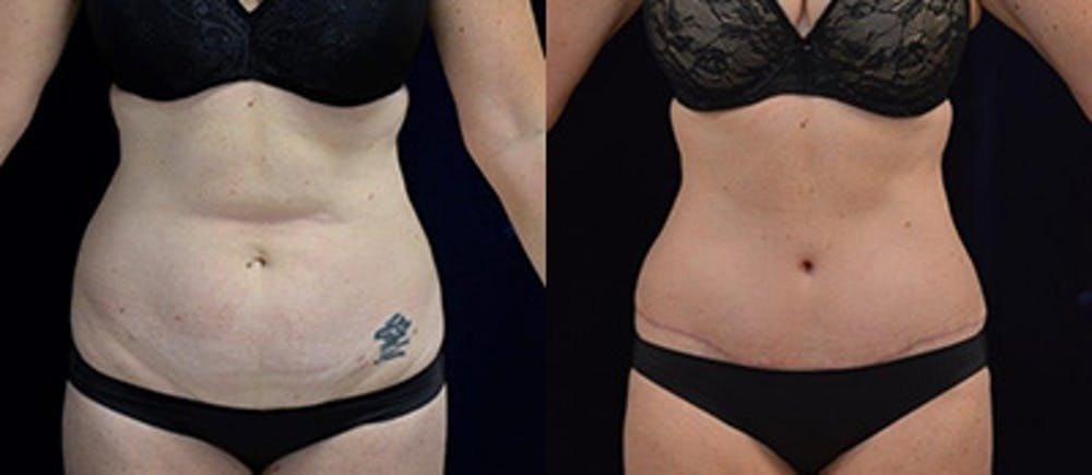 Abdominoplasty Gallery - Patient 4567226 - Image 1