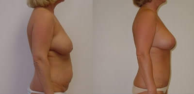 Abdominoplasty Gallery - Patient 4567227 - Image 32