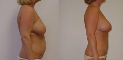Abdominoplasty Gallery - Patient 4567227 - Image 1