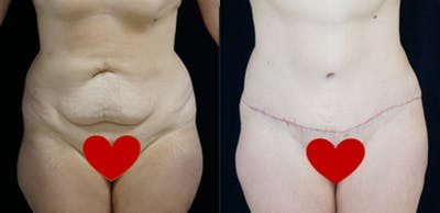 Abdominoplasty Gallery - Patient 16382564 - Image 1