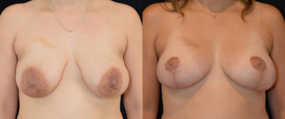 Breast Reduction Gallery - Patient 16382627 - Image 1