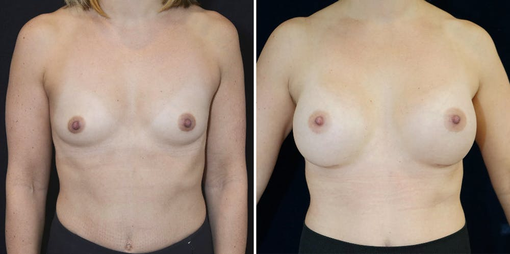 Breast Augmentation Gallery - Patient 23371222 - Image 1