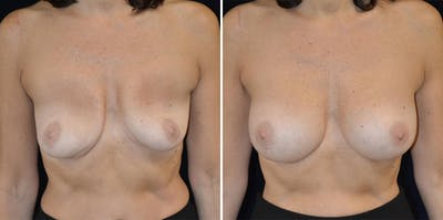 Breast Augmentation Gallery - Patient 23371333 - Image 1